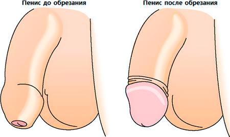 Половой член головка открыта